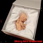 3d модель ребенка с УЗИ