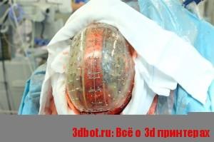 3d печать в трансплантологии костей