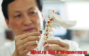 Позвонок-имплантант, напечатанный на 3D-принтере