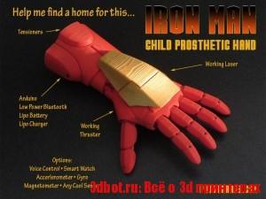 3D-печатный протез в виде руки IronMan