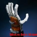 3D печать протезов