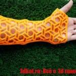 3D принтеры для лечения переломов