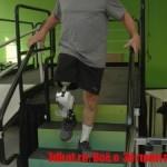 Бионический протез ноги