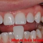 SLA принтер печатает зубные протезы