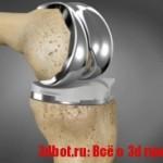 3D-сустав из титана