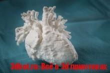3D-печать человеческого сердца