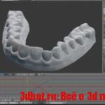 Как исправить прикус с помощью 3D печати