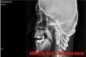 3d печать имплантов позвоночника