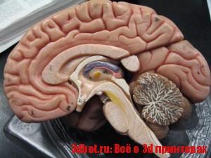 Лечение рака мозга с помощью 3D принтера
