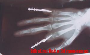 3d печатные вживляемые протезы
