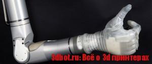 Бионический протез «Рука Люка»
