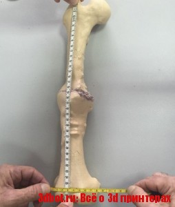 Технологии 3D-печати в хирургических операциях