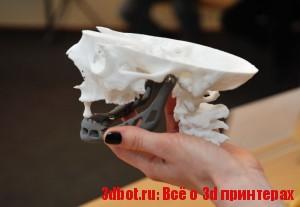 3d печать в реконструкции зубов и челюсти