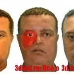 Лицевой протез сделали с помощью смартфона и 3D принтера