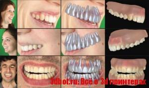 3d слепки зубов по фотографиям