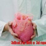 Применение 3D печатных макетов в хирургии сердца
