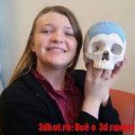 3D печатный черепной имплантат
