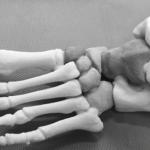 Регенерация костей с помощью 3d-печати