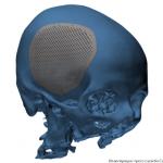 3D-печатные имплантаты для черепа